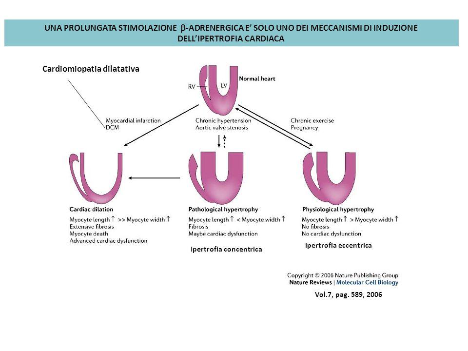 Vol.7, pag. 589, 2006 Ipertrofia eccentrica Ipertrofia concentrica Cardiomiopatia dilatativa UNA PROLUNGATA STIMOLAZIONE -ADRENERGICA E SOLO UNO DEI M