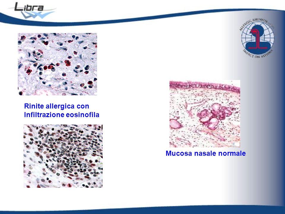 Mucosa nasale normale Rinite allergica con Infiltrazione eosinofila