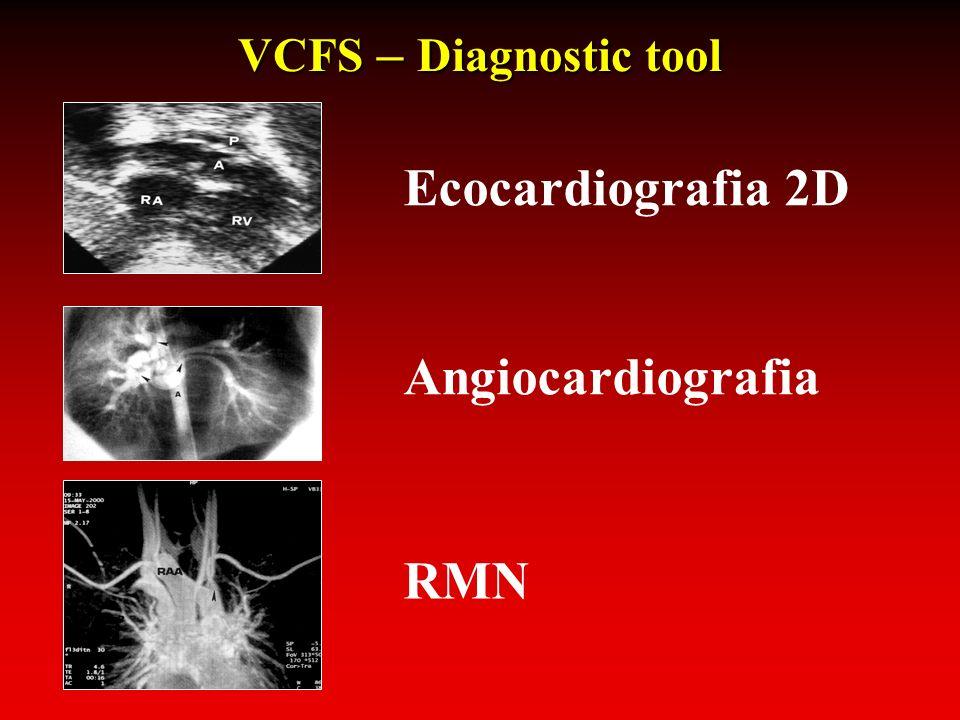VCFS – Diagnostic tool Ecocardiografia 2D Angiocardiografia RMN