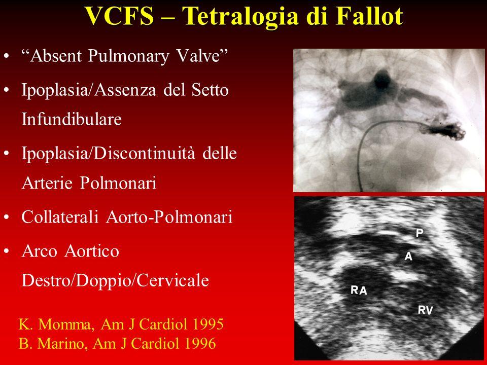 VCFS – Tetralogia di Fallot Absent Pulmonary Valve Ipoplasia/Assenza del Setto Infundibulare Ipoplasia/Discontinuità delle Arterie Polmonari Collatera