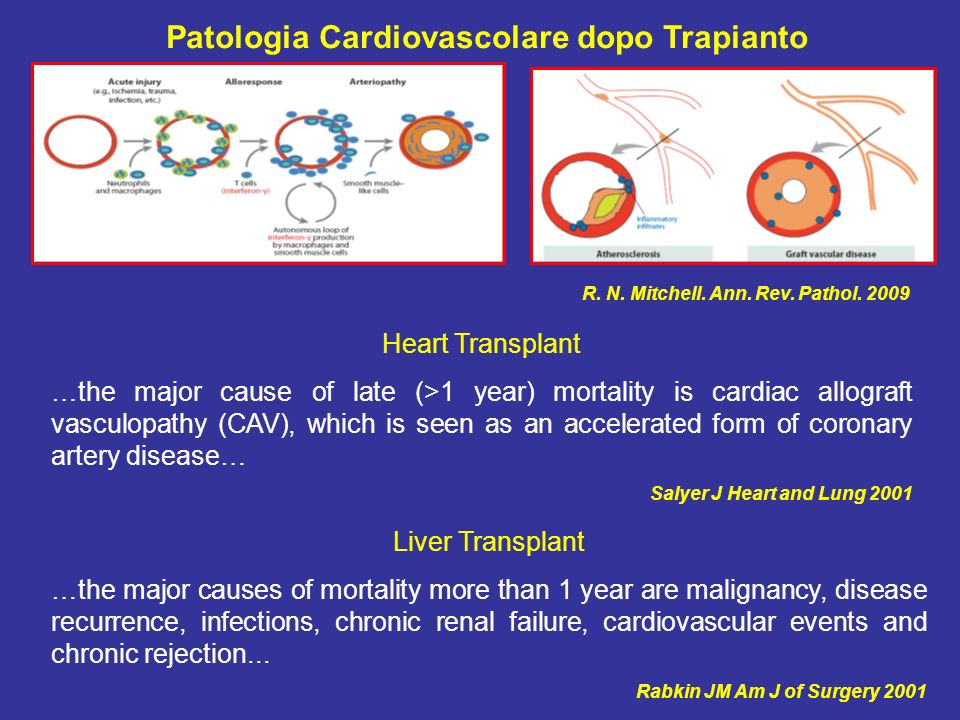 R. N. Mitchell. Ann. Rev. Pathol. 2009 Patologia Cardiovascolare dopo Trapianto Heart Transplant …the major cause of late (>1 year) mortality is cardi
