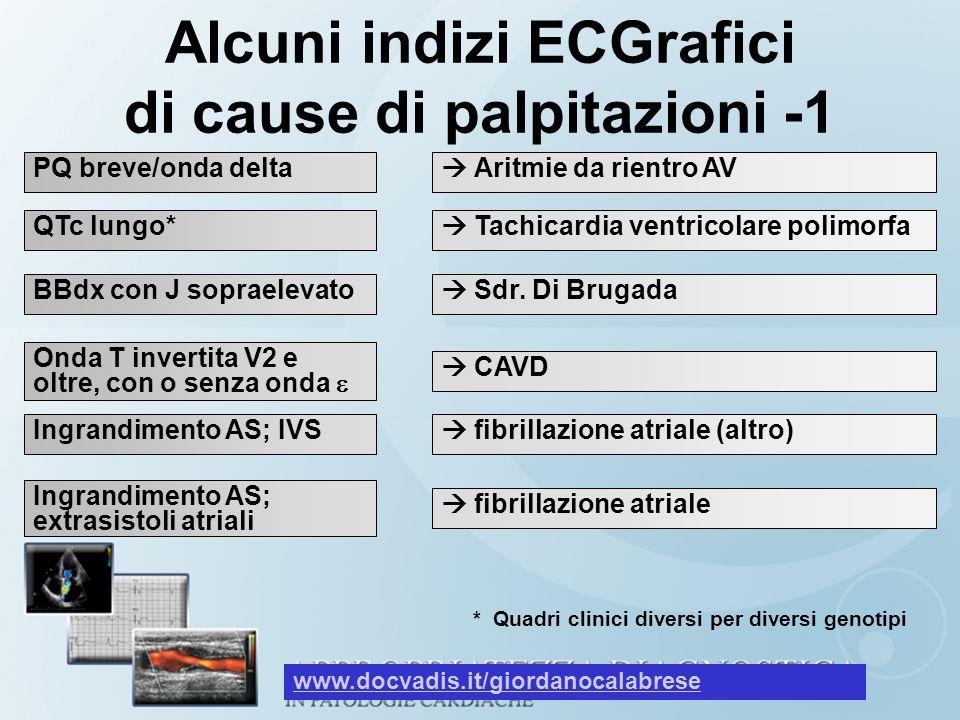 Alcuni indizi ECGrafici di cause di palpitazioni -1 Aritmie da rientro AV QTc lungo* Tachicardia ventricolare polimorfa * Quadri clinici diversi per d