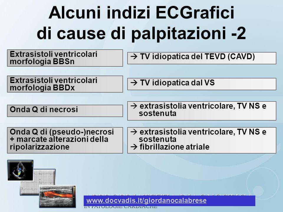 Alcuni indizi ECGrafici di cause di palpitazioni -2 Extrasistoli ventricolari morfologia BBSn Extrasistoli ventricolari morfologia BBDx TV idiopatica