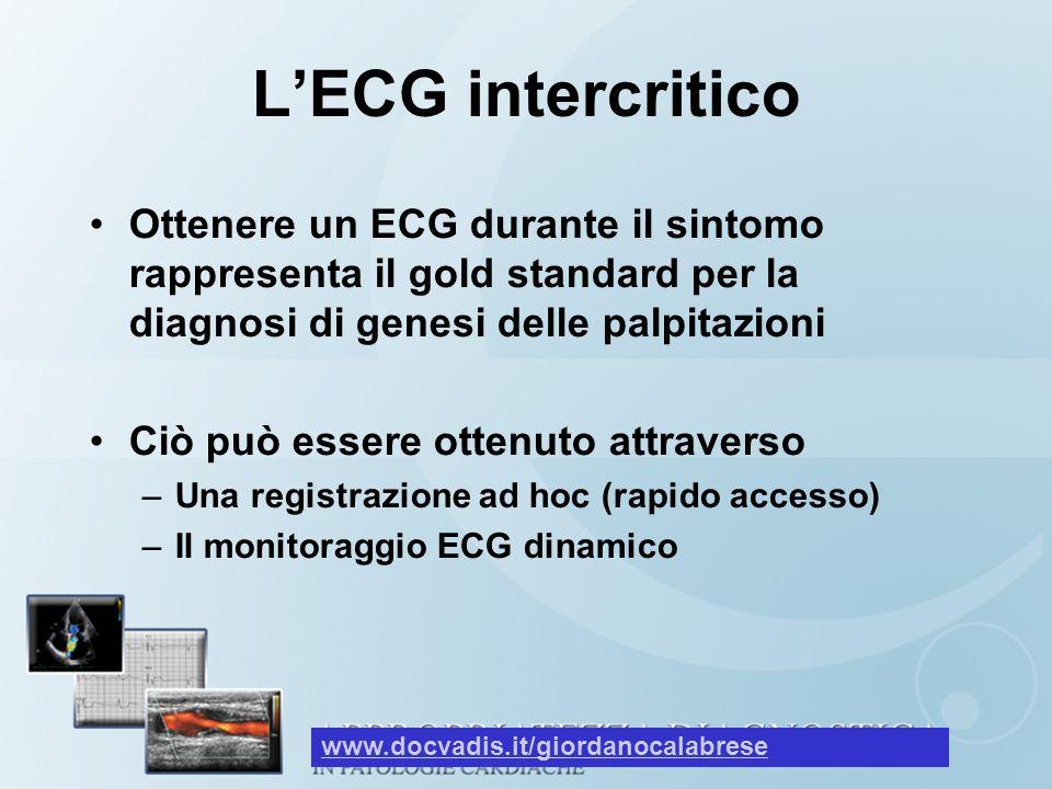 LECG intercritico Ottenere un ECG durante il sintomo rappresenta il gold standard per la diagnosi di genesi delle palpitazioni Ciò può essere ottenuto
