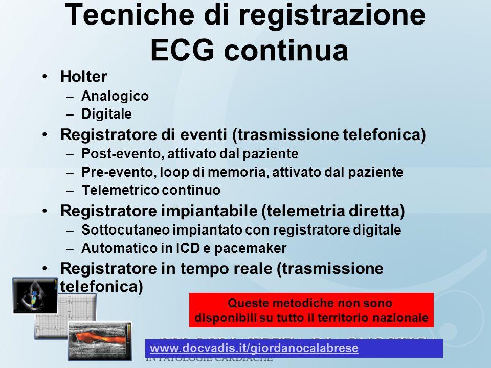 Tecniche di registrazione ECG continua Holter –Analogico –Digitale Registratore di eventi (trasmissione telefonica) –Post-evento, attivato dal pazient