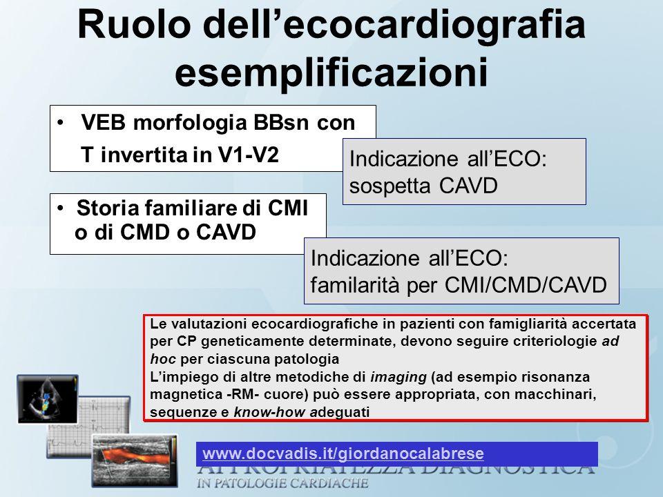 Ruolo dellecocardiografia esemplificazioni VEB morfologia BBsn con T invertita in V1-V2 Indicazione allECO: sospetta CAVD Storia familiare di CMI o di