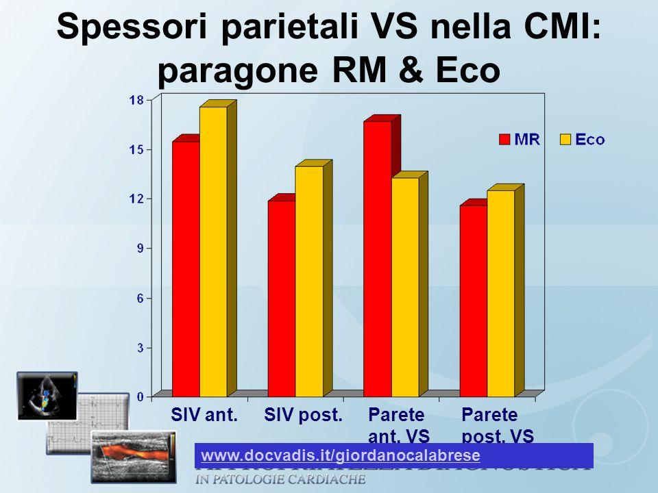 Spessori parietali VS nella CMI: paragone RM & Eco SIV ant.SIV post.Parete ant. VS Parete post. VS www.docvadis.it/giordanocalabrese