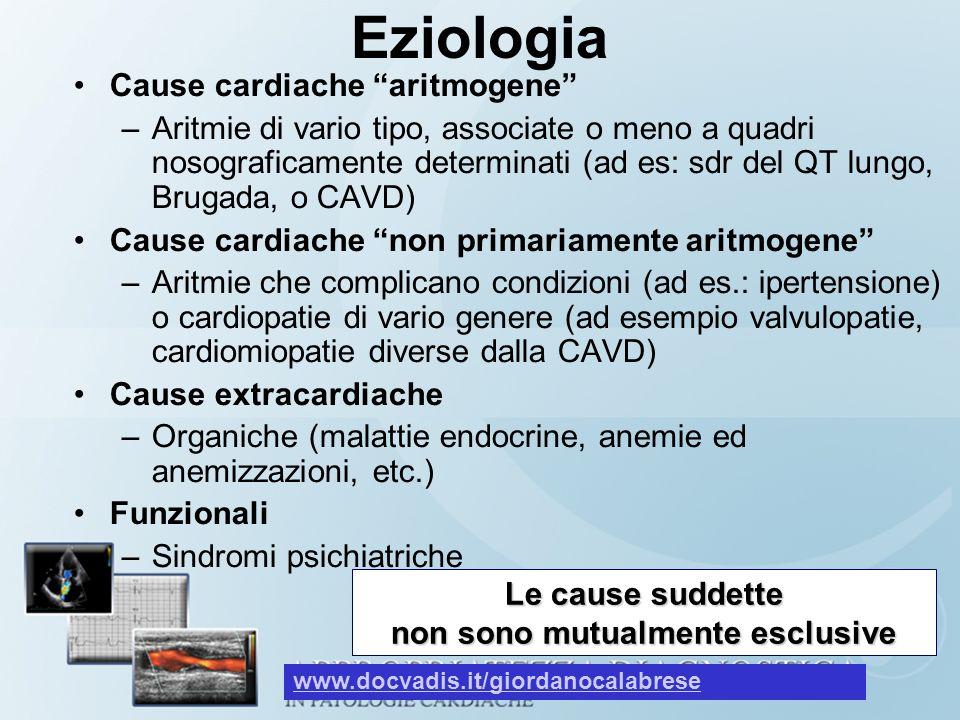 Eziologia Cause cardiache aritmogene –Aritmie di vario tipo, associate o meno a quadri nosograficamente determinati (ad es: sdr del QT lungo, Brugada,