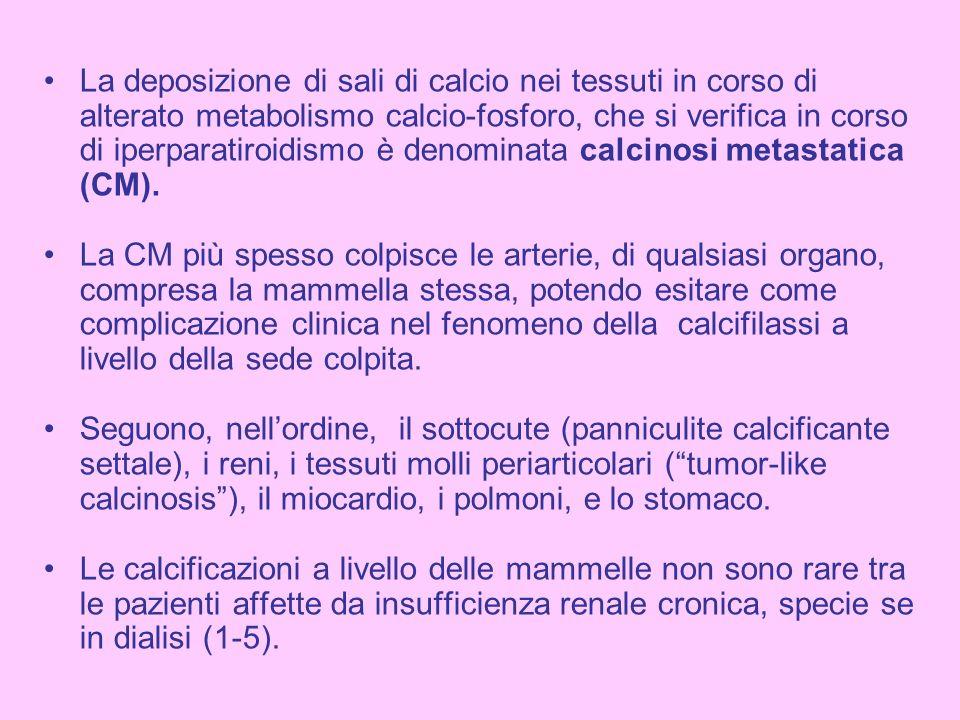 La deposizione di sali di calcio nei tessuti in corso di alterato metabolismo calcio-fosforo, che si verifica in corso di iperparatiroidismo è denomin