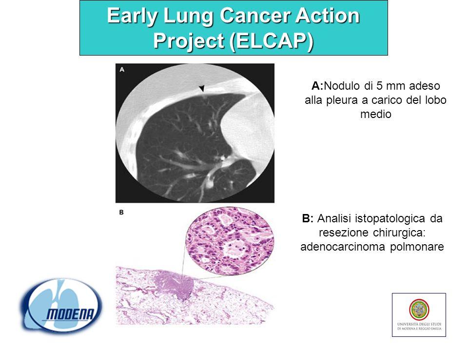 A:Nodulo di 5 mm adeso alla pleura a carico del lobo medio B: Analisi istopatologica da resezione chirurgica: adenocarcinoma polmonare Early Lung Canc