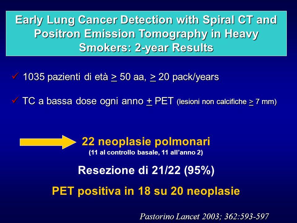 1035 pazienti di età > 50 aa, > 20 pack/years 1035 pazienti di età > 50 aa, > 20 pack/years TC a bassa dose ogni anno + PET (lesioni non calcifiche >