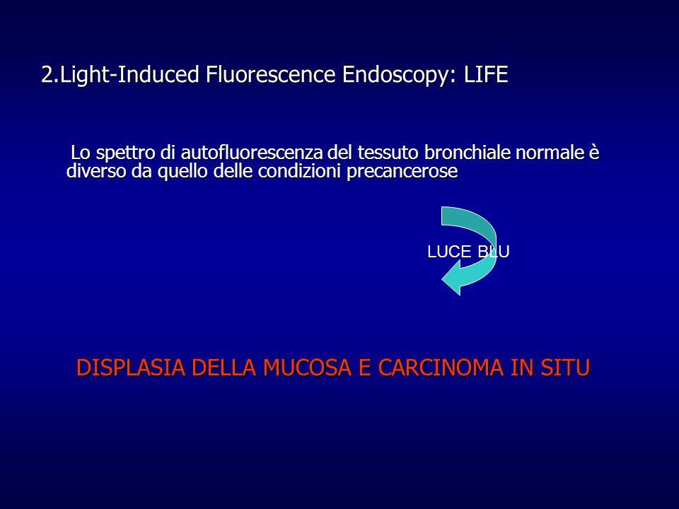 2.Light-Induced Fluorescence Endoscopy: LIFE Lo spettro di autofluorescenza del tessuto bronchiale normale è diverso da quello delle condizioni precan