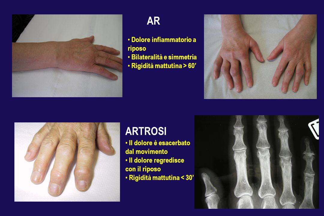 AR ARTROSI Il dolore è esacerbato dal movimento Il dolore regredisce con il riposo Rigidità mattutina < 30 Dolore infiammatorio a riposo Bilateralità