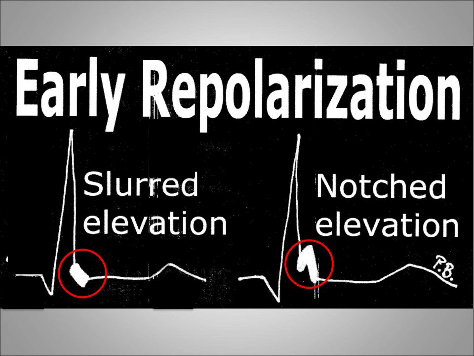 NOTCHED SLURRED Unwitting victims of electrocardiography.