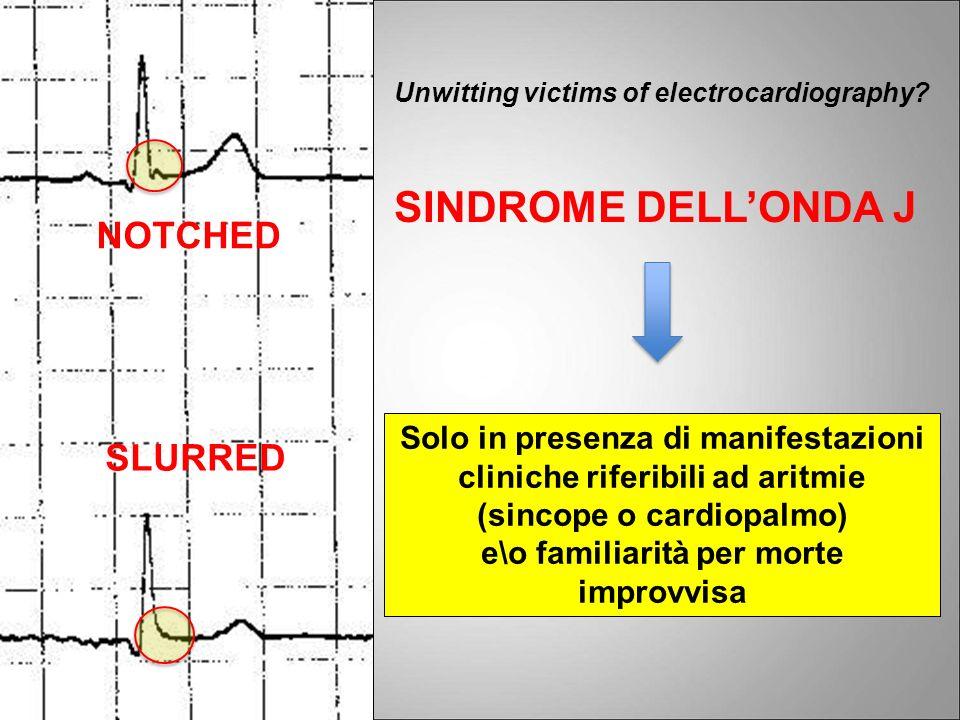 NOTCHED SLURRED Unwitting victims of electrocardiography? SINDROME DELLONDA J Solo in presenza di manifestazioni cliniche riferibili ad aritmie (sinco