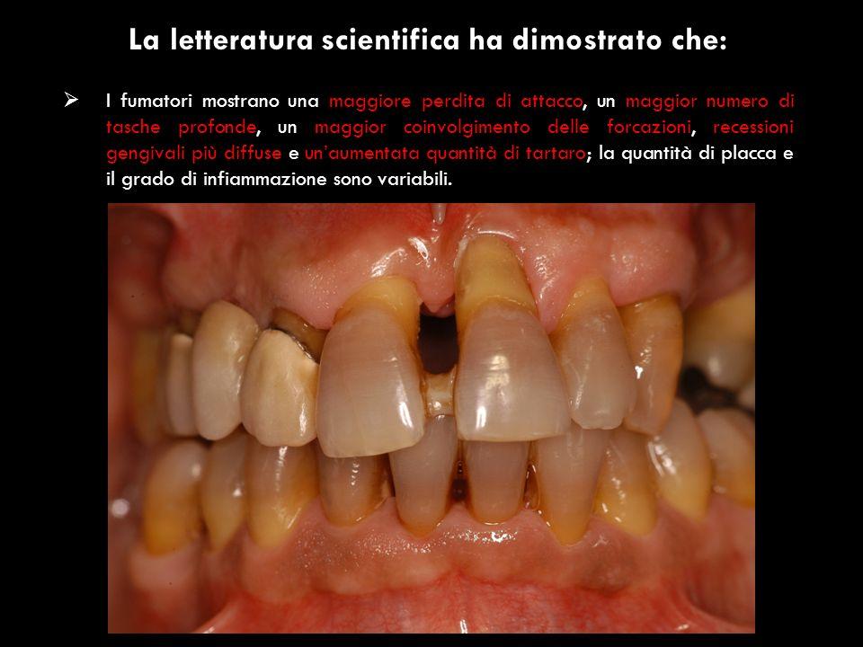 La letteratura scientifica ha dimostrato che: I fumatori mostrano una maggiore perdita di attacco, un maggior numero di tasche profonde, un maggior co