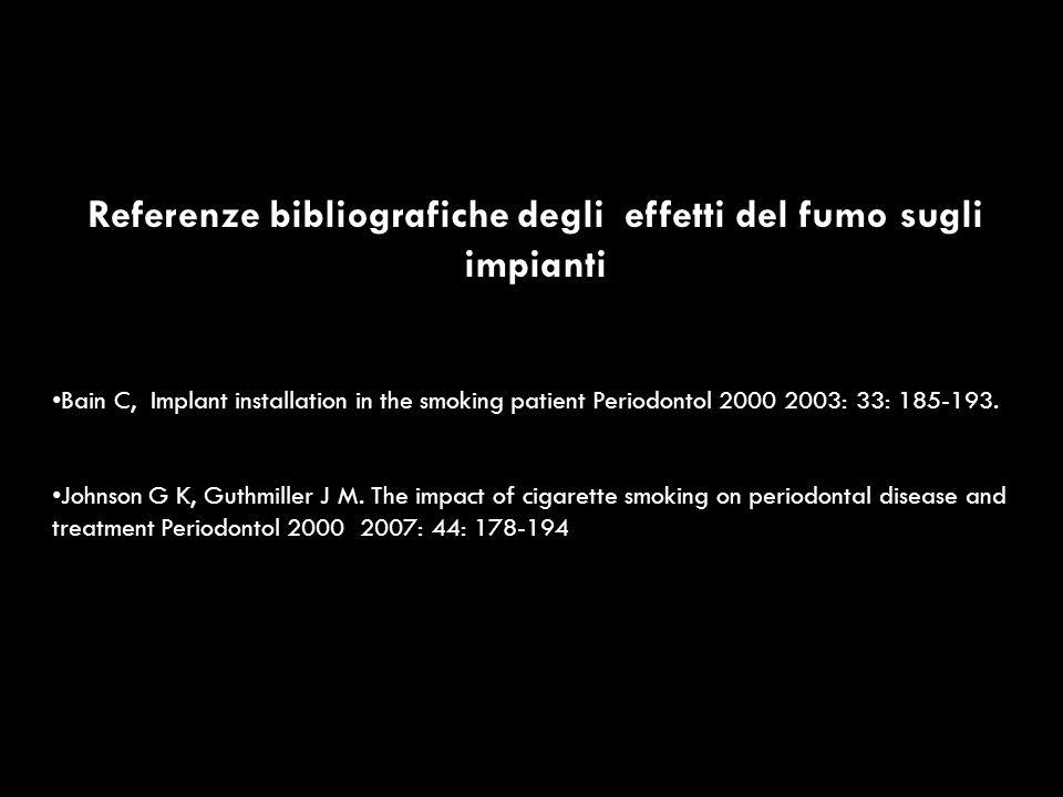 Referenze bibliografiche degli effetti del fumo sugli impianti Bain C, Implant installation in the smoking patient Periodontol 2000 2003: 33: 185-193.