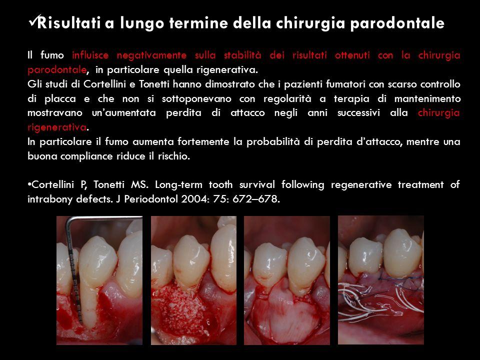 Risultati a lungo termine della chirurgia parodontale Il fumo influisce negativamente sulla stabilità dei risultati ottenuti con la chirurgia parodont