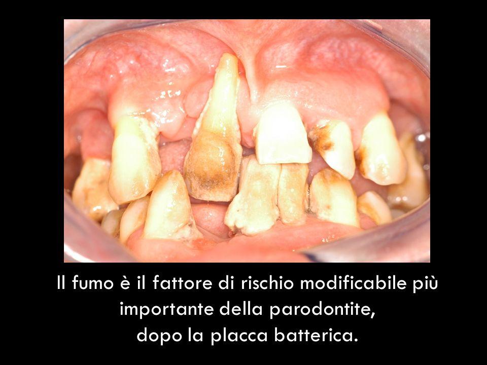 Negli ultimi 30 anni è stata dimostrata linfluenza del tabacco su : Prevalenza e severità della malattia parodontale Perdita di denti Processi di guarigione a seguito di terapia parodontale non chirurgica e chirurgica Osteointegrazione implantare e periimplantite