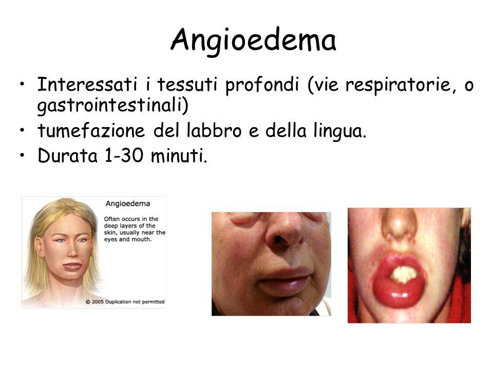 Angioedema Interessati i tessuti profondi (vie respiratorie, o gastrointestinali) tumefazione del labbro e della lingua. Durata 1-30 minuti.