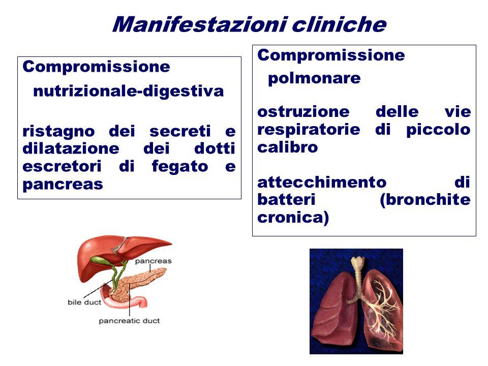 Manifestazioni cliniche Compromissione nutrizionale-digestiva ristagno dei secreti e dilatazione dei dotti escretori di fegato e pancreas Compromissio