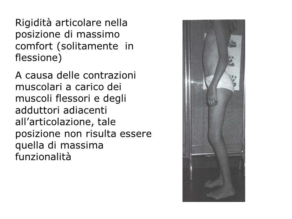 Rigidità articolare nella posizione di massimo comfort (solitamente in flessione) A causa delle contrazioni muscolari a carico dei muscoli flessori e