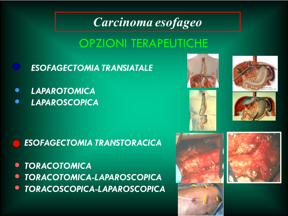 OPZIONI TERAPEUTICHE ESOFAGECTOMIA TRANSIATALE LAPAROTOMICA LAPAROSCOPICA ESOFAGECTOMIA TRANSTORACICA TORACOTOMICA TORACOTOMICA-LAPAROSCOPICA TORACOSC