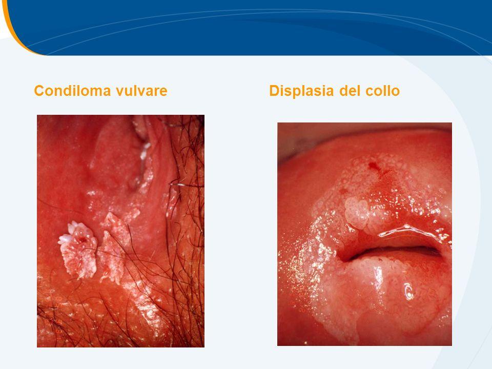 Condiloma vulvare Displasia del collo