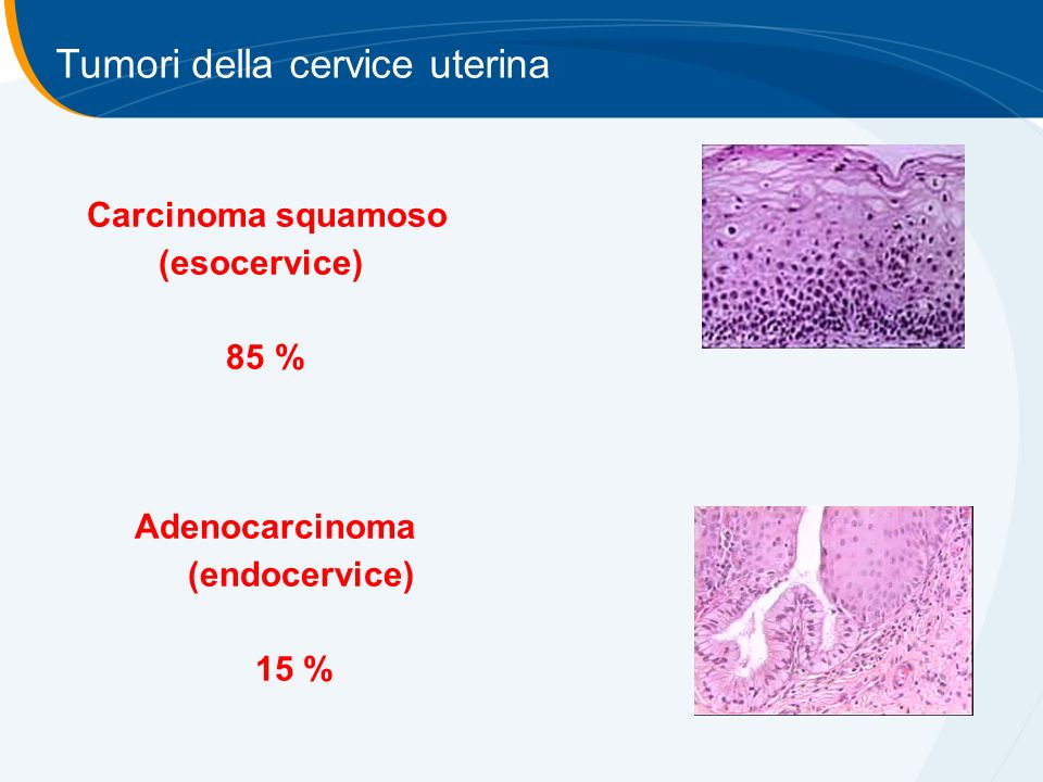 Tumori della cervice uterina Carcinoma squamoso (esocervice) 85 % Adenocarcinoma (endocervice) 15 %