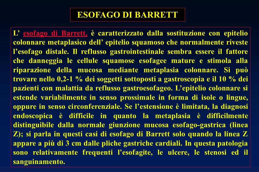 ESOFAGO DI BARRETT L esofago di Barrett, è caratterizzato dalla sostituzione con epitelio colonnare metaplasico dell epitelio squamoso che normalmente