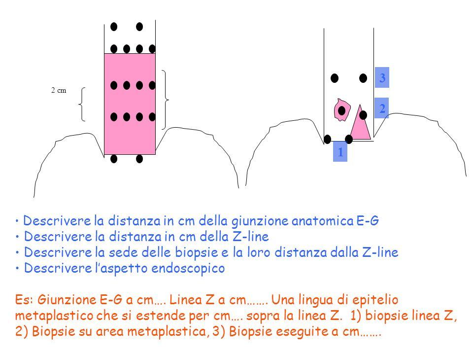 N E Z 2 cm B 1 -B x Descrivere la distanza in cm della giunzione anatomica E-G Descrivere la distanza in cm della Z-line Descrivere la sede delle biop