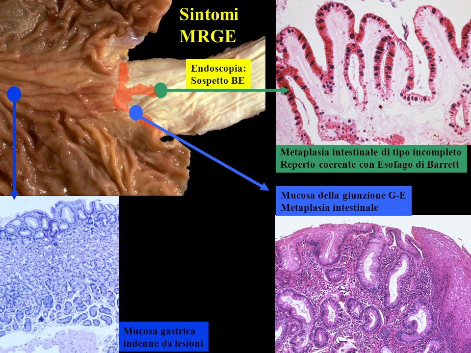 Mucosa della giunzione G-E Metaplasia intestinale Mucosa gastrica indenne da lesioni Endoscopia: Sospetto BE Metaplasia intestinale di tipo incompleto