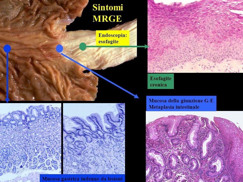 Esofagite cronica Mucosa della giunzione G-E Metaplasia intestinale Mucosa gastrica indenne da lesioni Endoscopia: esofagite Sintomi MRGE