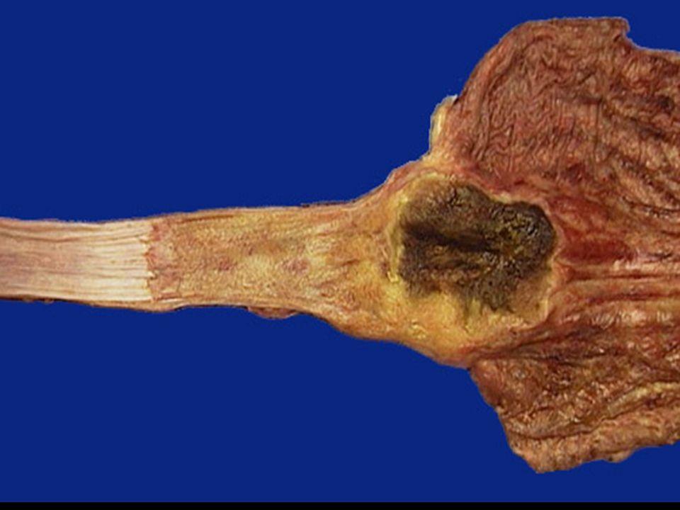 Barretts Esophagus I.M. at G-E JunctionIncomplete Gastric I.M.