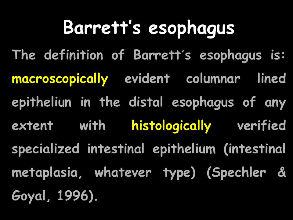 Barretts esophagus The definition of Barrett´s esophagus is: macroscopically evident columnar lined epitheliun in the distal esophagus of any extent w
