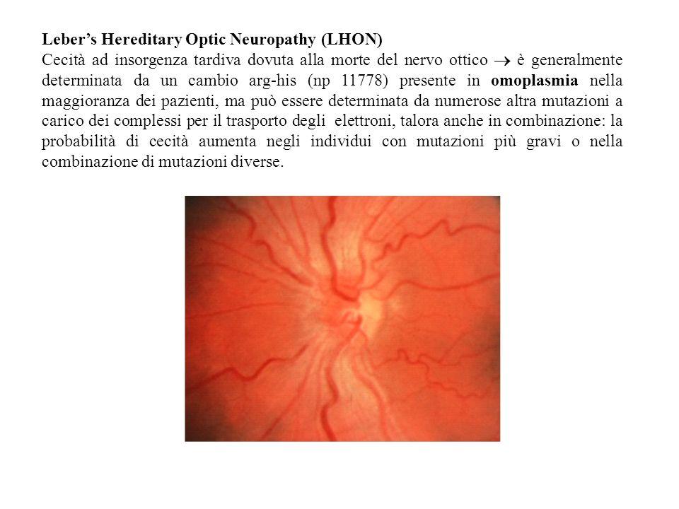 Lebers Hereditary Optic Neuropathy (LHON) Cecità ad insorgenza tardiva dovuta alla morte del nervo ottico è generalmente determinata da un cambio arg-