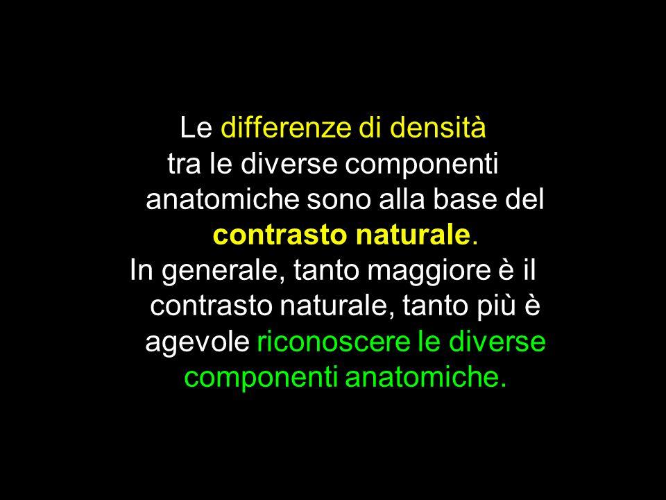 Le differenze di densità tra le diverse componenti anatomiche sono alla base del contrasto naturale. In generale, tanto maggiore è il contrasto natura