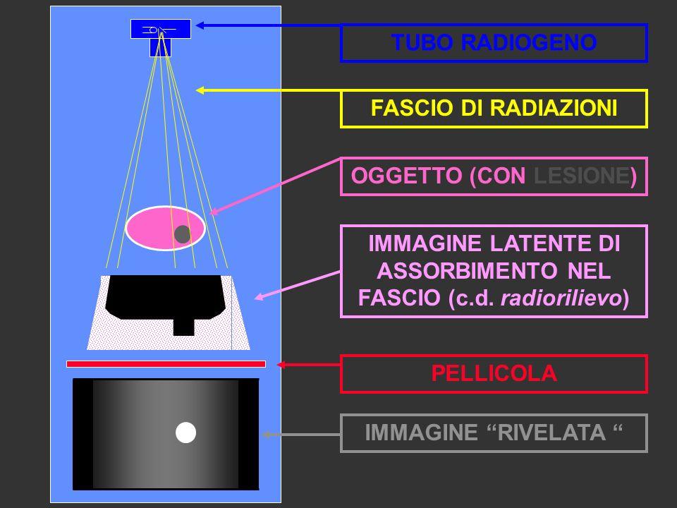 IMMAGINE LATENTE DI ASSORBIMENTO NEL FASCIO (c.d. radiorilievo) PELLICOLA OGGETTO (CON LESIONE) TUBO RADIOGENO FASCIO DI RADIAZIONI IMMAGINE RIVELATA