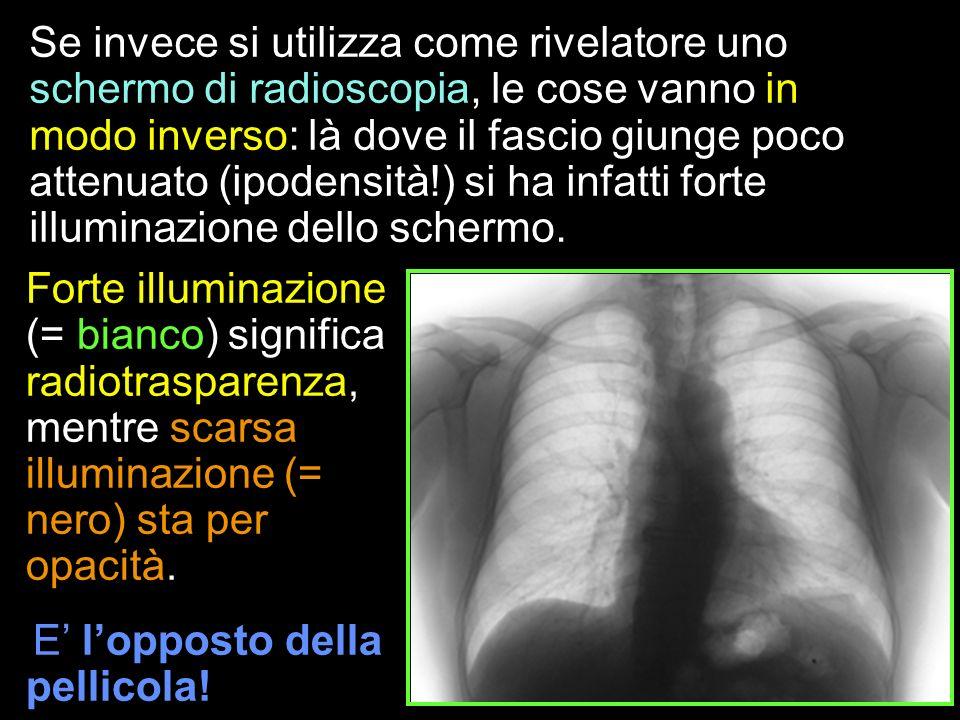 Se invece si utilizza come rivelatore uno schermo di radioscopia, le cose vanno in modo inverso: là dove il fascio giunge poco attenuato (ipodensità!)