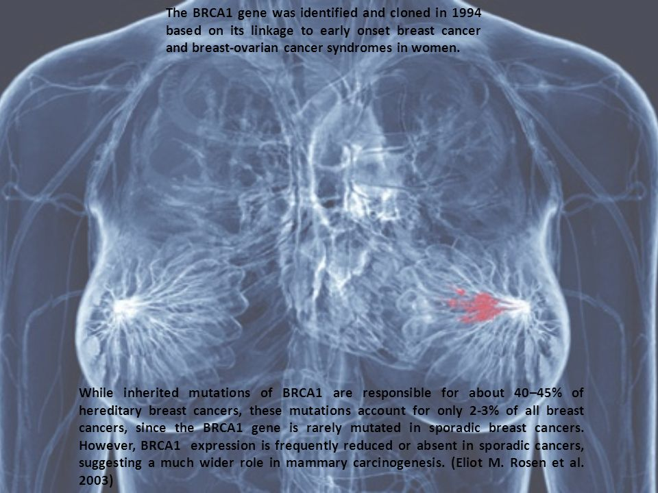 The BRCA1 gene was identified and cloned in 1994 based on its linkage to early onset breast cancer and breast-ovarian cancer syndromes in women. While