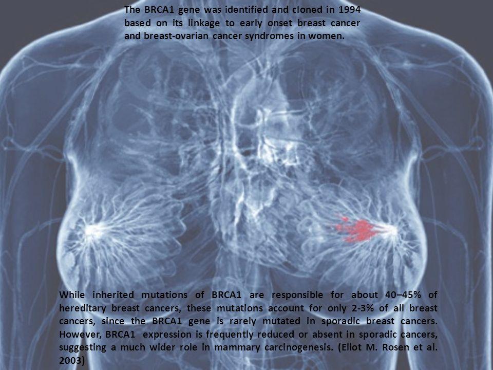 Circa l80% delle donne con mutazioni a carico di BRCA1 o BRCA2 svilupperà il carcinoma della mammella durante la propria vita, con elevati rischi anche per lo sviluppo di carcinoma ovarico.