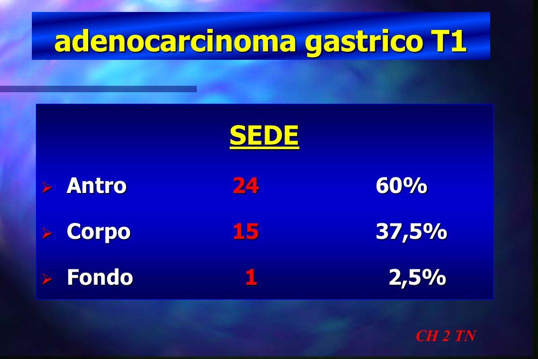 adenocarcinoma gastrico T1 CH 2 TN SEDE Antro 2460% Antro 2460% Corpo1537,5% Corpo1537,5% Fondo 1 2,5% Fondo 1 2,5%