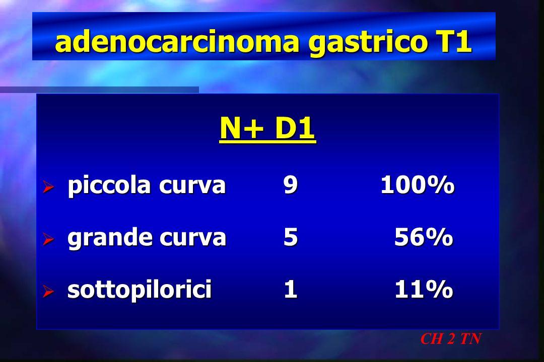 adenocarcinoma gastrico T1 CH 2 TN N+ D1 piccola curva 9100% piccola curva 9100% grande curva5 56% grande curva5 56% sottopilorici1 11% sottopilorici1