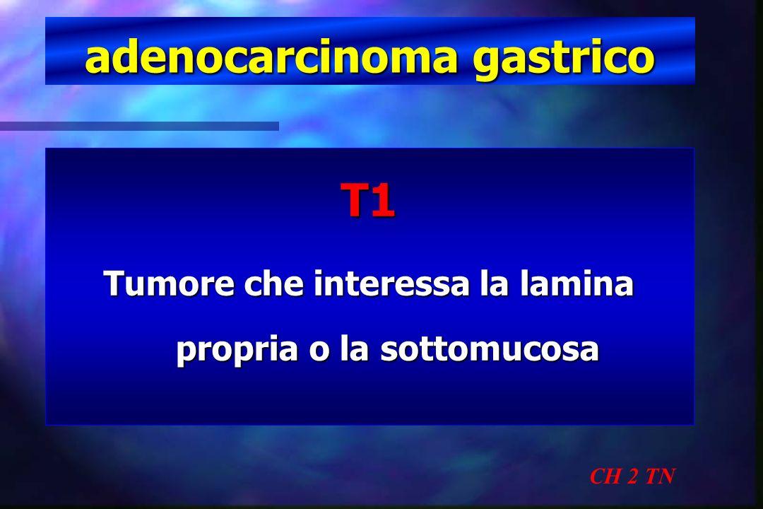 Trattamento adenoca early CH 2 TN La mucosectomia endoscopica permette di ottenere un tasso di recidive di solo il 2,8 % per tumori di < 2 cm di diametro Tanabe et al.