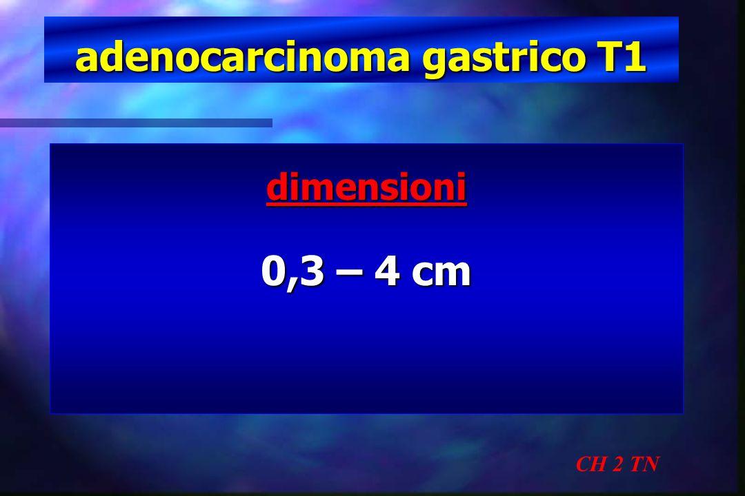 adenocarcinoma gastrico T1 CH 2 TN dimensioni 0,3 – 4 cm