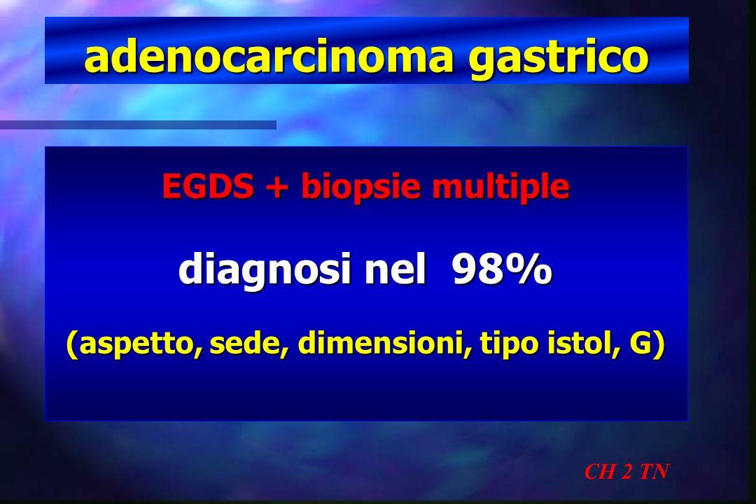 adenocarcinoma gastrico CH 2 TN EGDS + biopsie multiple diagnosi nel 98% (aspetto, sede, dimensioni, tipo istol, G)