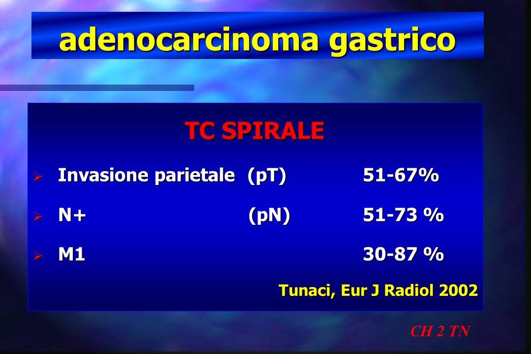 adenocarcinoma gastrico CH 2 TN TC SPIRALE Invasione parietale (pT)51-67% Invasione parietale (pT)51-67% N+ (pN)51-73 % N+ (pN)51-73 % M130-87 % M130-