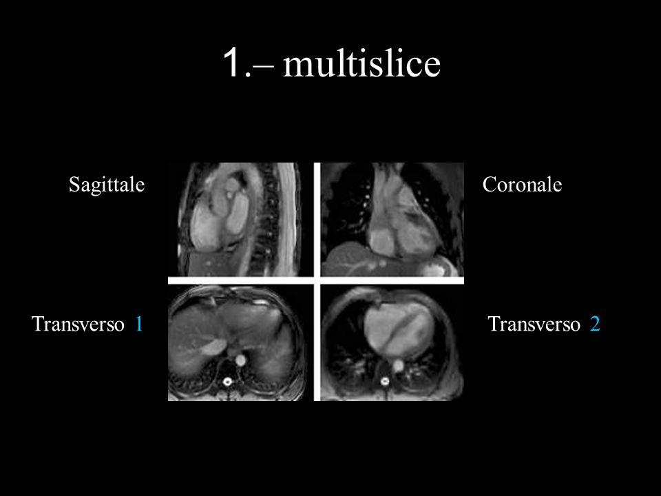 1.– multislice SagittaleCoronale Transverso 1Transverso 2