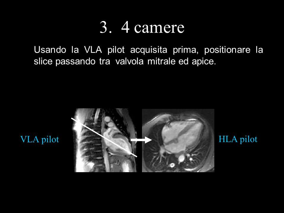 3. 4 camere Usando la VLA pilot acquisita prima, positionare la slice passando tra valvola mitrale ed apice. HLA pilot VLA pilot