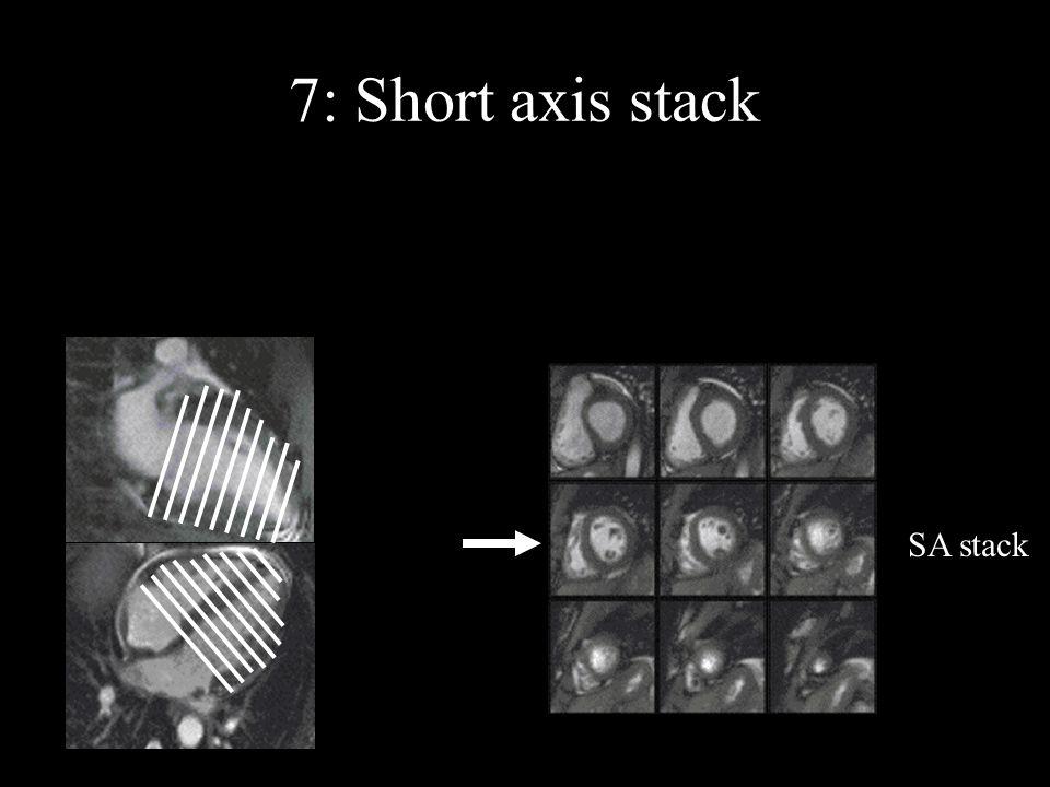 7: Short axis stack SA stack